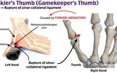 Healing Thumb Issues Before they Become Chronic